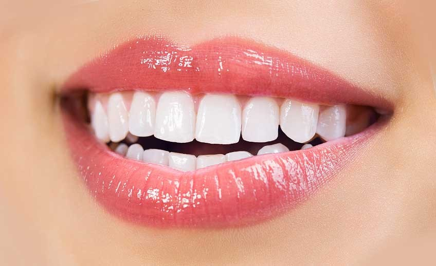 Teeth Whitening Chula Vista